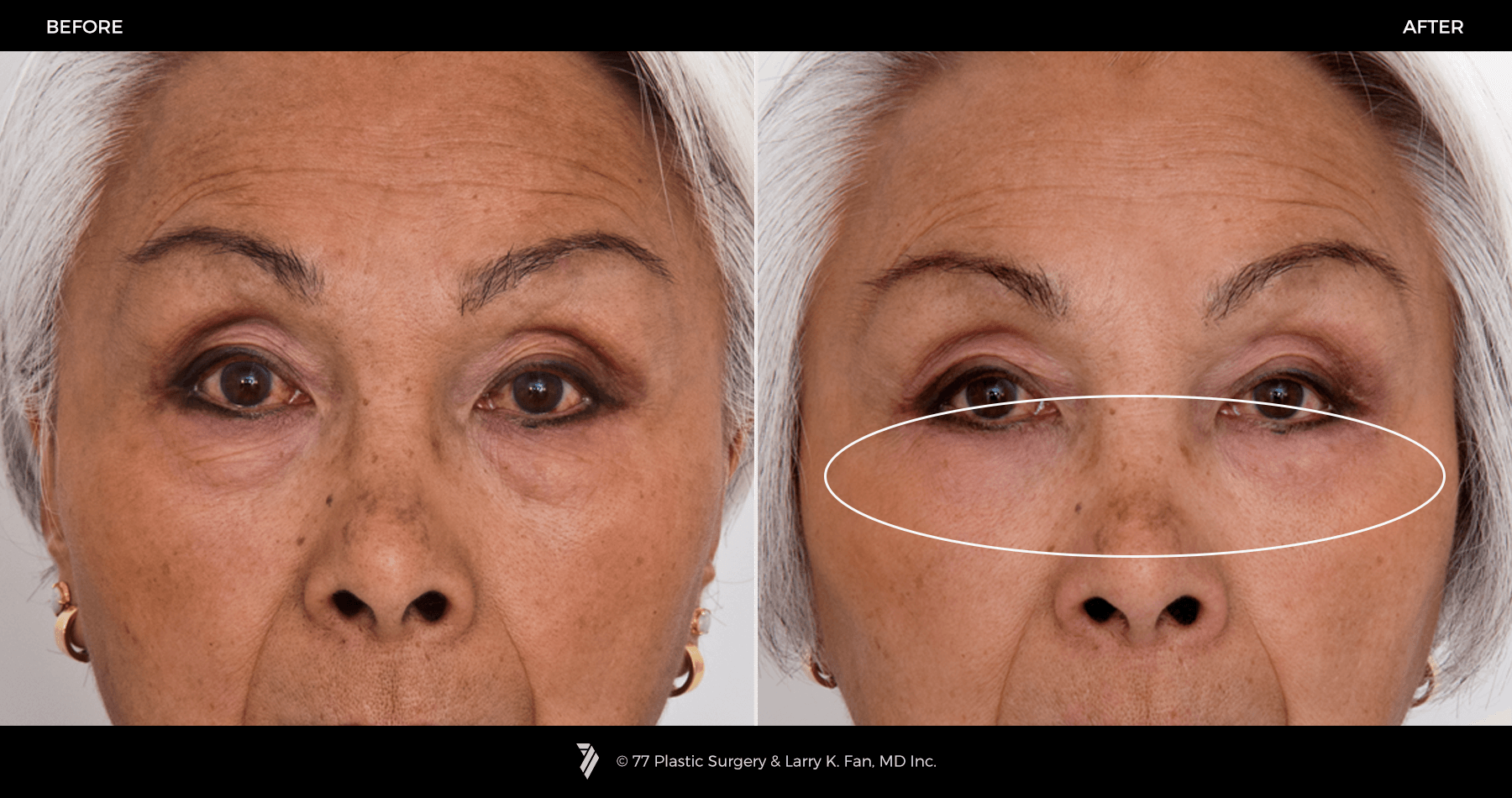 Eyelid Surgery Brow Lift 77p Gallery 77p Gallery