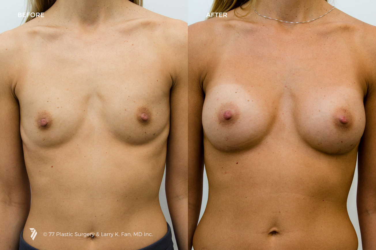 Breast evaluations for implants