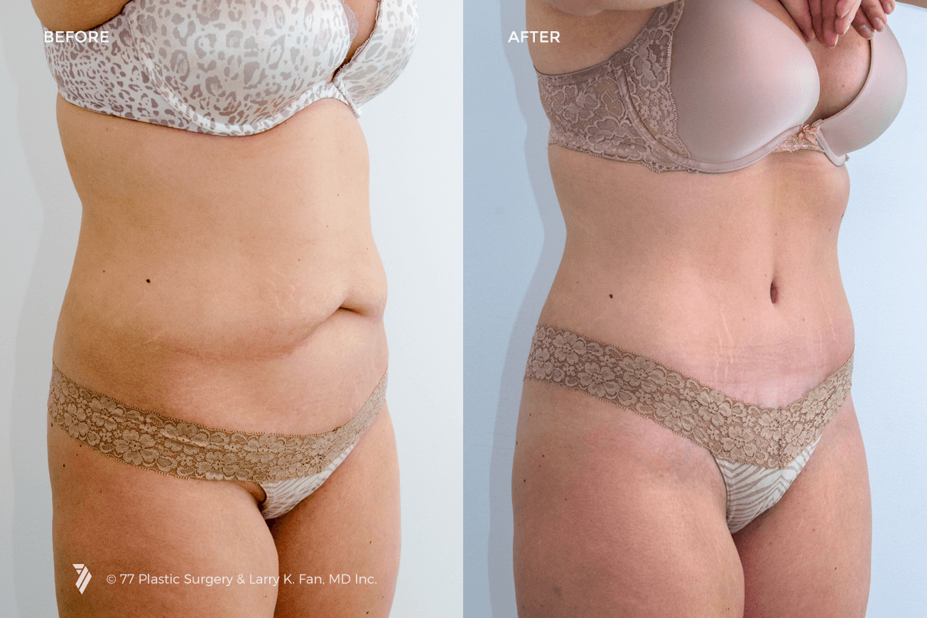 31004 Tummy Tuck 2 77p Gallery 77p Gallery