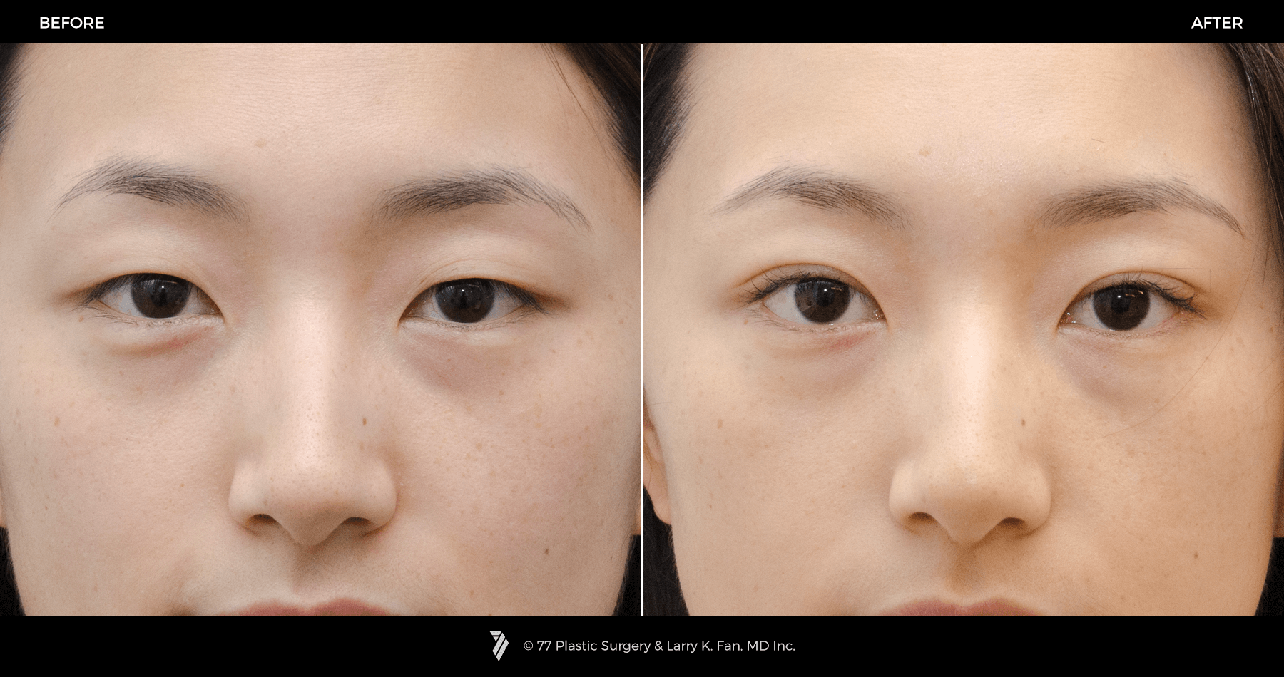 how to get double eyelids naturally