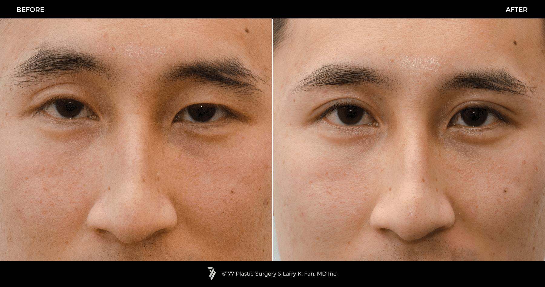 double eye lid Asian